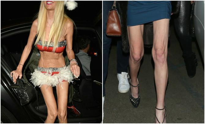 Dugo se borila sa anoreksijom, a evo kako izgleda danas
