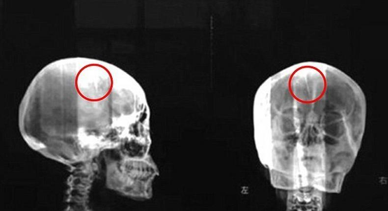 A Chinese woman who has always had regular headaches was surprised to learn that a sharp object was stucked inside her skull.