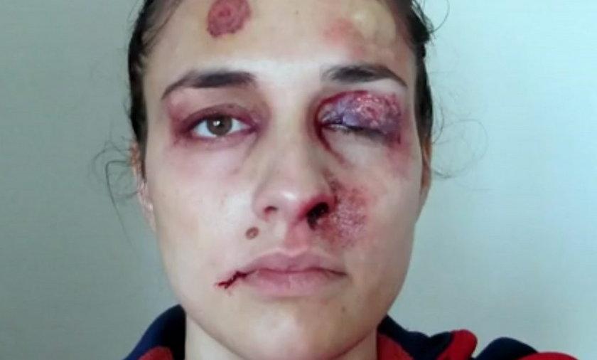 twarz bitej kobiety