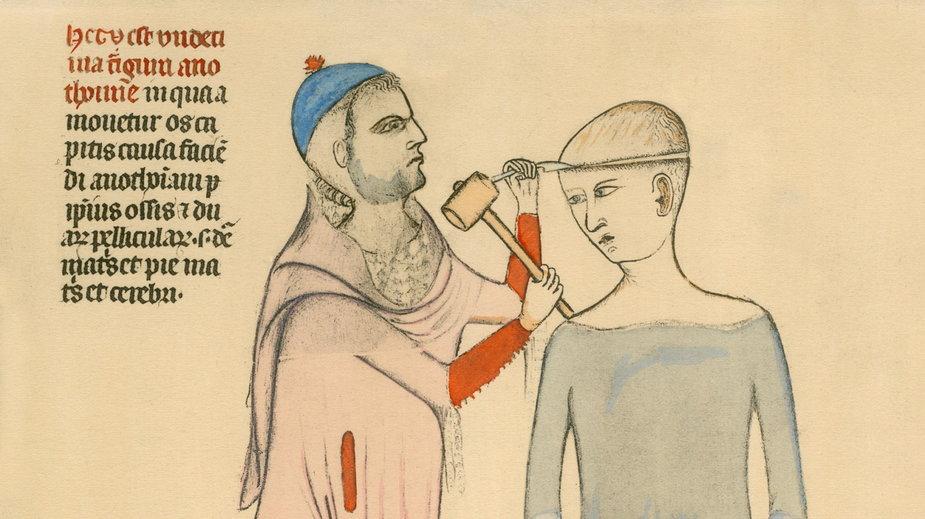 Średniowieczne metody leczenia przyprawiają o zawrót głowy