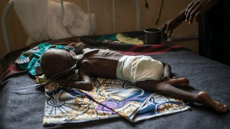 A young child suffering from severe malnutrition is treated at the In-Patient Therapeutic Feeding Centre in Maiduguri, northeastern Nigeria, on September 17, 2016
