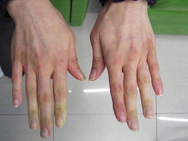 kezét a hideg vörös foltoktól)