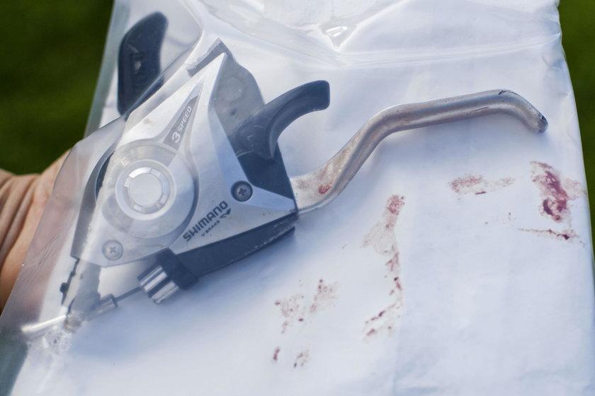 12-centymetrowy hamulec wbił się w udo dziewczynki