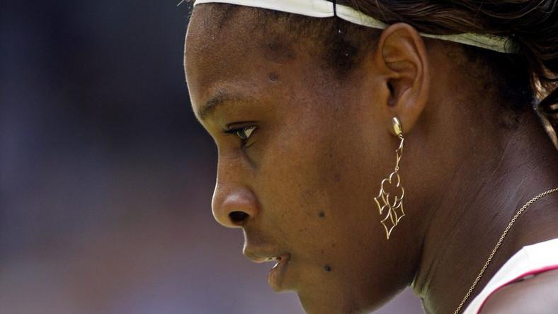 Serena Williams przeszła operację zatoru w płucach