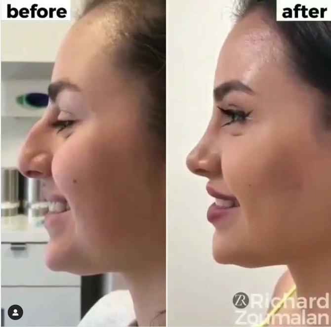 Pre i posle operacije nosa