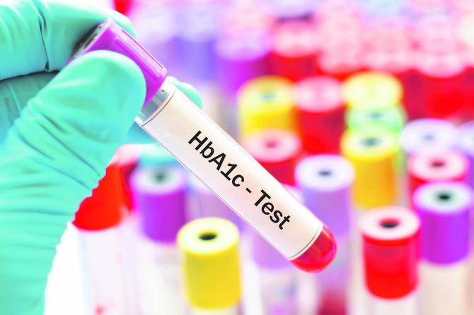 DIJAGNOZA HbA1c TEST dijabetes