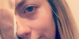 Straciła wzrok w jednym oku przez komara. Teraz ostrzega innych