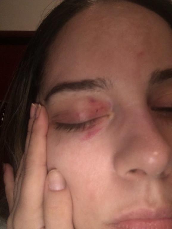 Povreda oka nakon nekoliko dana od napada
