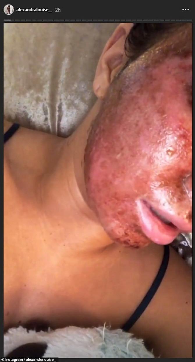 Izgorela je lice antiejdž tretmanom