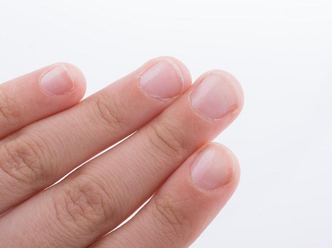 Upozoravaju na društvenim mrežama: Ova promena na noktu može biti znak za kancer