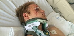 Straszny wypadek aktora. Uratowali mu życie i twarz
