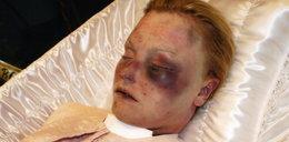 Tak nie wygląda dziewczyna uduszona przez przypadek!