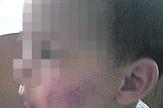 Izujedan VDJ u vrticu povreda obraza02 foto privatna arhiva