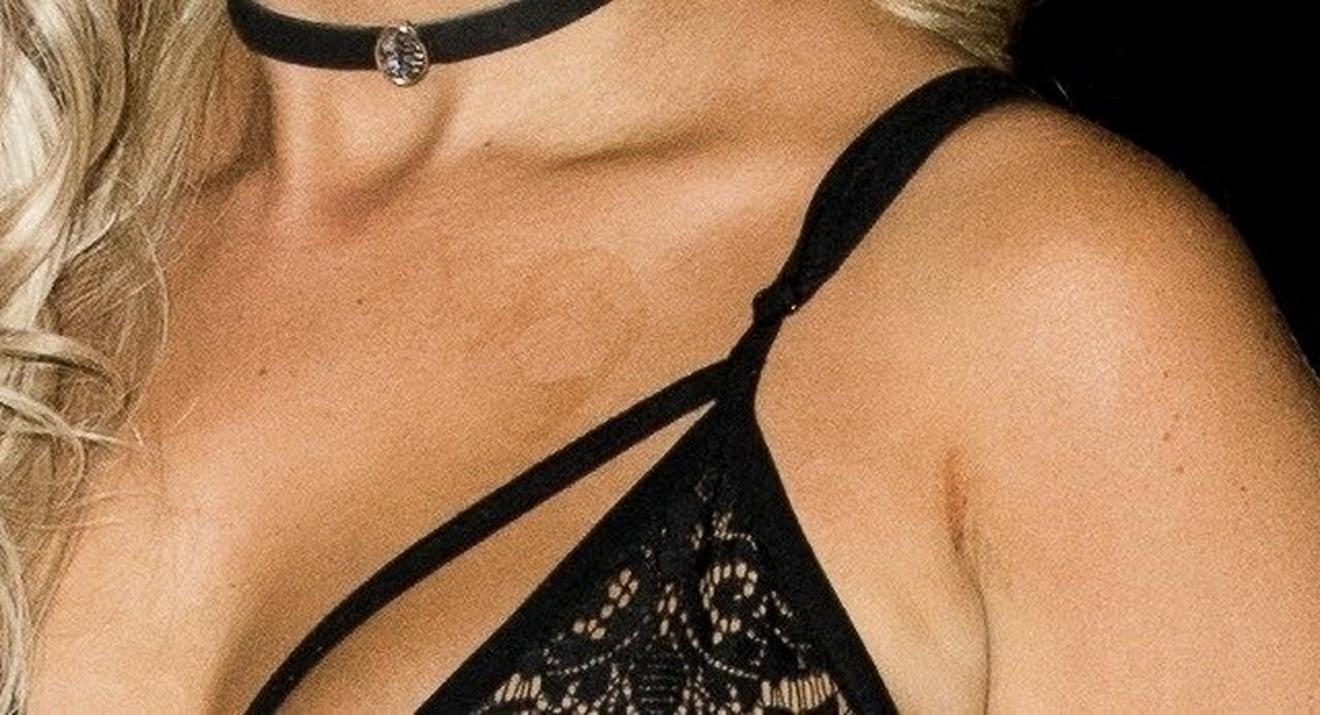 Mrlje na koži: Kloi Feri