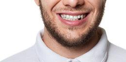 Nie dbasz o zęby? Grozi ci nie tylko próchnica