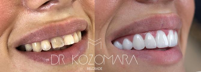 Zubi pre i posle lumira