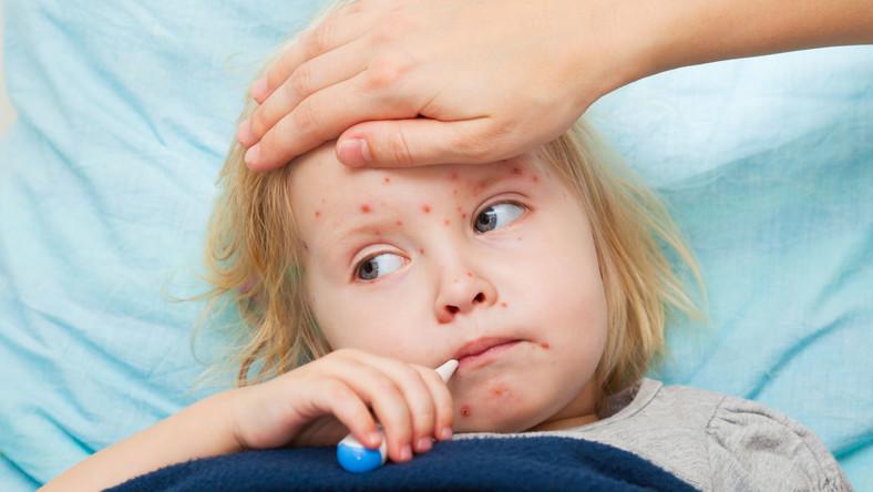 Obok ospy wietrznej była dawniej najczęstszą chorobą zakaźną wieku dziecięcego. Dzięki obowiązkowemu szczepieniu w 13.-14. miesiącu życia na odrę w Polsce choruje niewiele dzieci, głównie nieszczepionych. W ubiegłym roku w całej Polsce odnotowano 110 przypadków zachorowań na odrę, w 2013 roku było ich 84. W tym roku może być gorzej, bo epidemia odry panuje w Niemczech i stamtąd dociera do nas