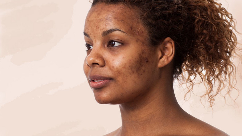 Here are the top 3 foods that cause acne [Tomi's Colour Pavilion]
