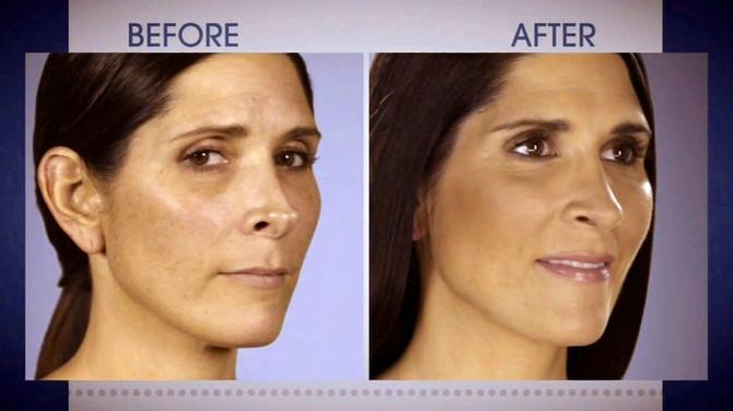 Nos za koji je rekla da liči na štipaljku i nov nos koji je dobila nakon druge operacije