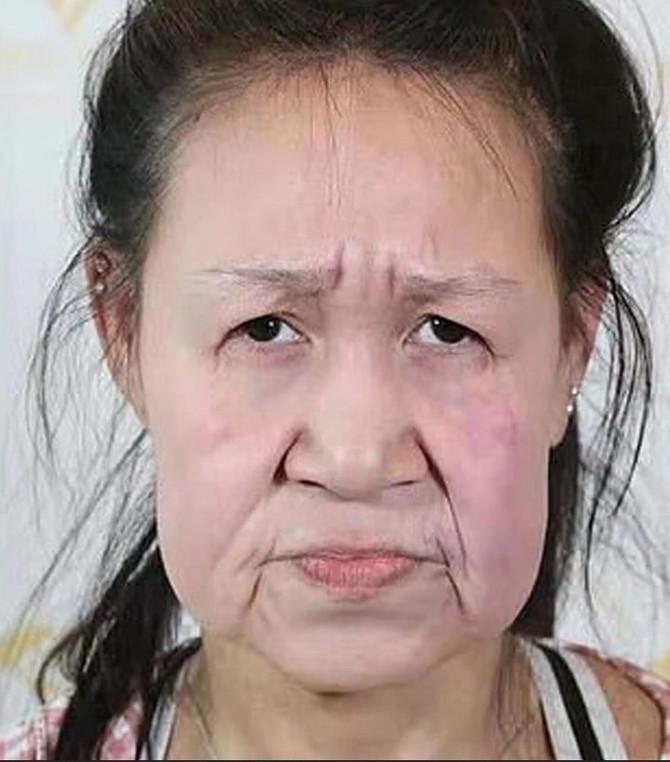 Ksio Fang pre operacije