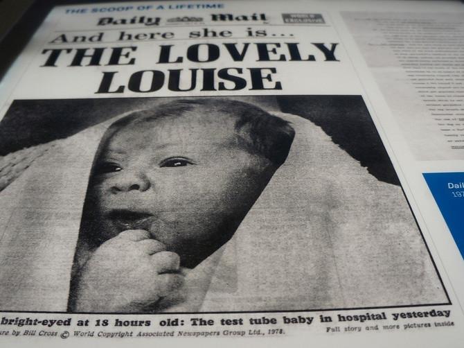Ovo je Luisa, rođena je pre 40 godina i čitav svet je gledao u ČUDU kada se rodila. Evo zbog čega