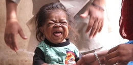 23-latek utknął w ciele niemowlęcia
