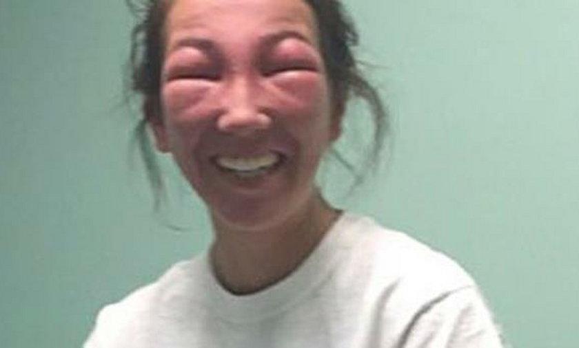 Co się stało z twarzą tej dziewczyny?