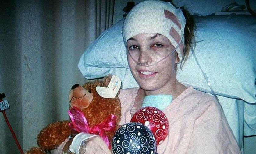 Spalona żywcem: lekarze już ją grzebali, rodzice nie mogli patrzeć twarz
