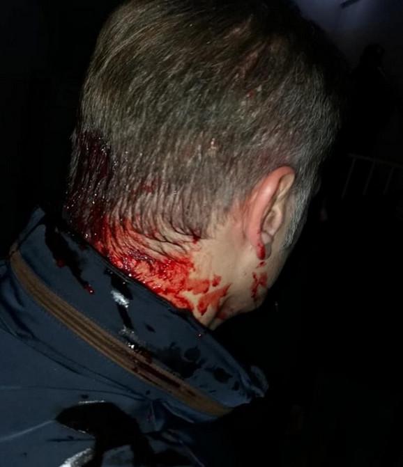 Borko Stefanović prevezen je u bolnicu