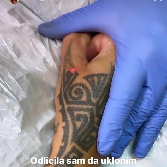 Seka Aleksić uklanja tetovaže