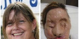 Pogryziona przez szympansa odzyskała twarz