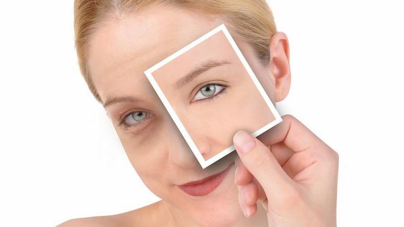 Oznaki starzenia najszybciej pojawiają się na skórze pod oczami.