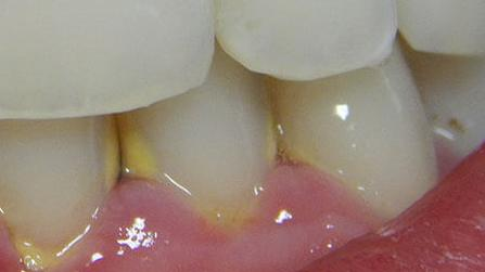 Parodontózis tünetei és kezelése