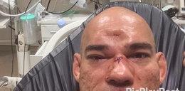 Brutalny nokaut w MMA. Zawodnik ma wgniecioną czaszkę