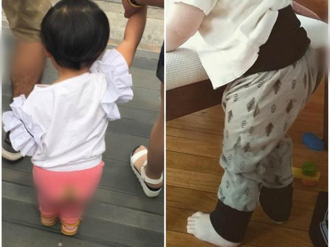 Roditelji sve češće deci oblače pantalone sa RUPAMA NA GENITALIJAMA: Ovo je PRAVI RAZLOG za to i mnogi se ZGROZE kada ga čuju