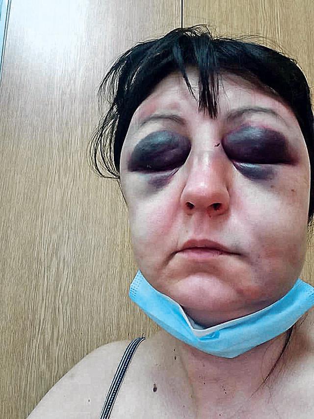 Pravnicu D. R. iz Šapca prebio taksista koji je godinama progoni