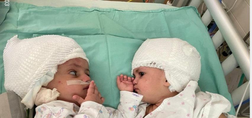 Rozłączone siostry syjamskie pierwszy raz spojrzały sobie w oczy