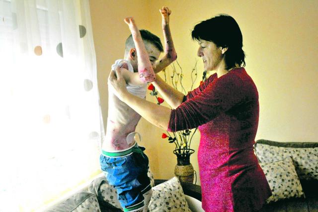 Mučna svakodnevica: I najblaži dodir dečaku nanosi bol