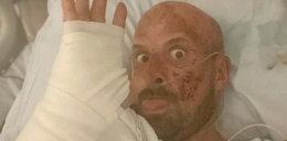 """Kaskader uległ strasznemu wypadkowi na planie """"Mam Talent"""". """"Śmierci mówię nananana boo boo"""""""