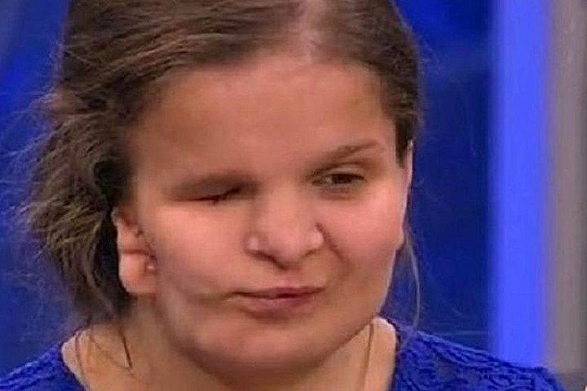 Katia Badajewa umarła w trakcie operacji plastycznej