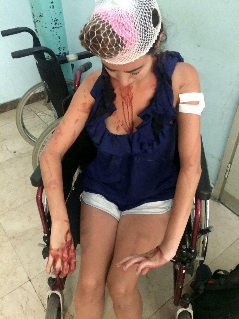 Chorwacja, Split. Laura Denmar pobita przez właściciela hostelu