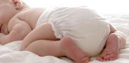 Zaczerwienienie pod pieluszką? Nie ignoruj tego