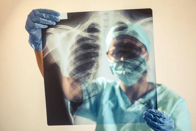 Na plućima postkovid pacijenata primećene određene promene