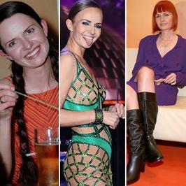 Kasia Stankiewicz nie zawsze wyglądała idealnie. Jak się zmieniała?