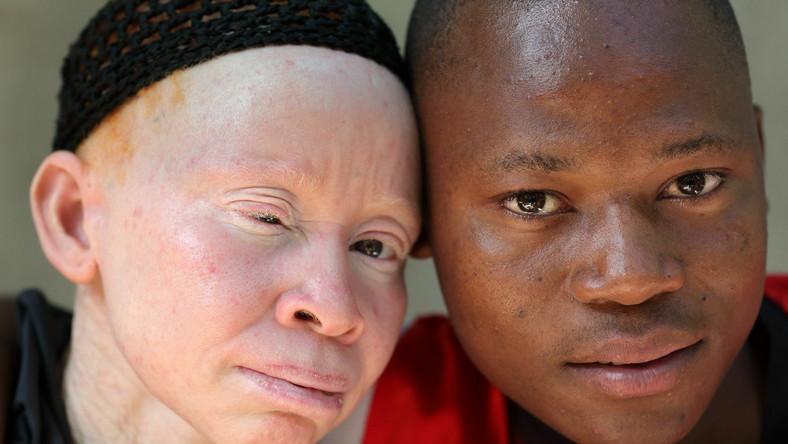 Kwitnie handel kośćmi albinosów