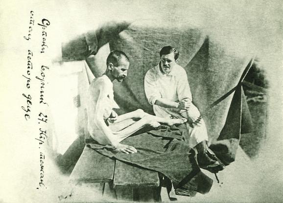 Srpska vojska na Krfu. Izgled vojnika čija se težina svela na 27 kg posle gladi i zime na putu preko Albanije, 1916.