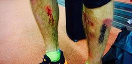 Polski mistrz złamał tyczkę. Polała się krew, przerażające wideo