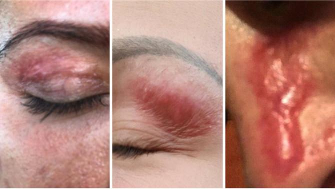 Žene se masovno žale na nestručan rad u jednom beogradskom kozmetičkom salonu