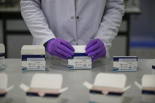 Borba sa korona virusom u Americi u startu bila je otežana zbog nedostatka odgovarajućih testova i težnja je da se to reši brzim testovima