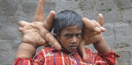 8-latek ma dłonie większe od głowy